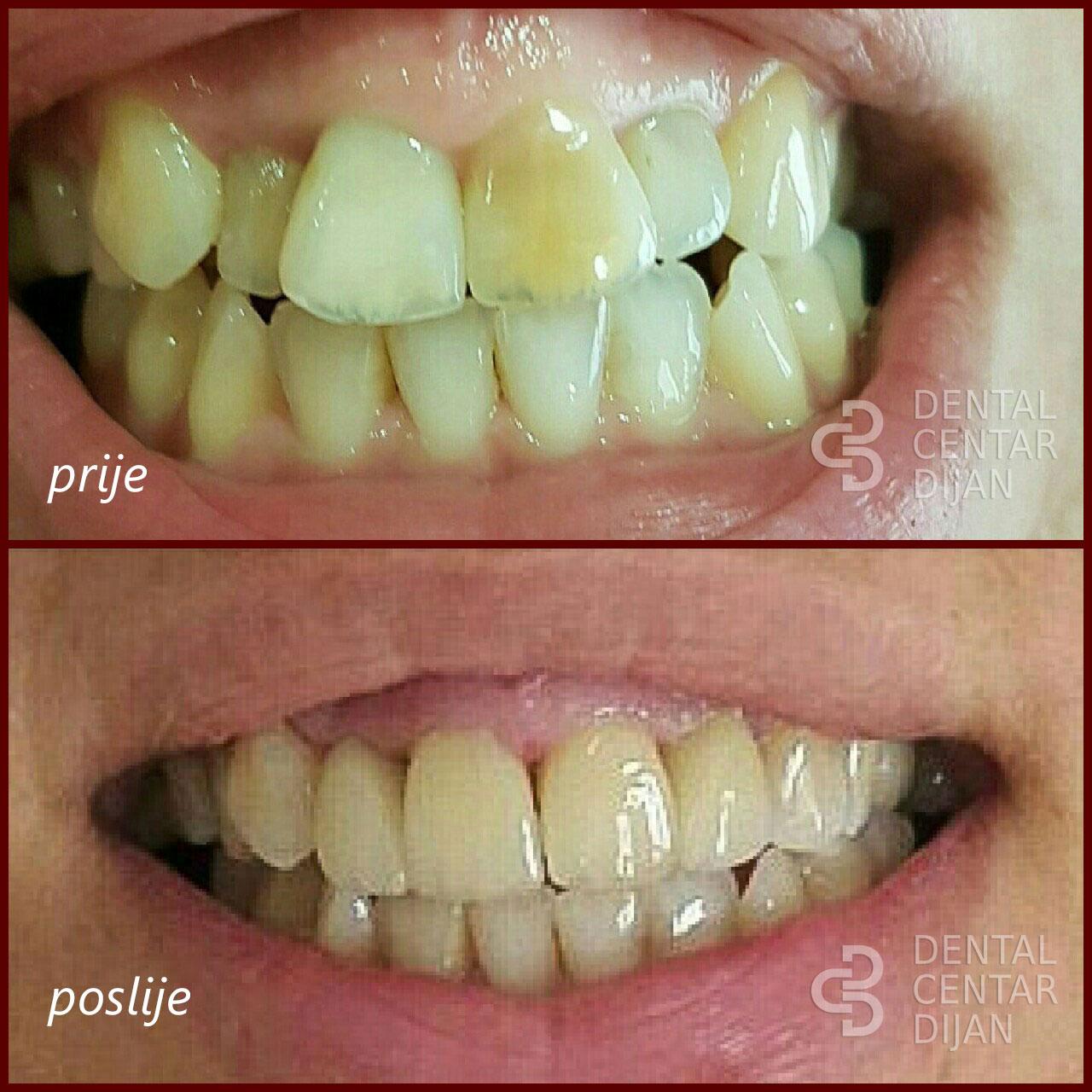 Estetska dentalna medicina