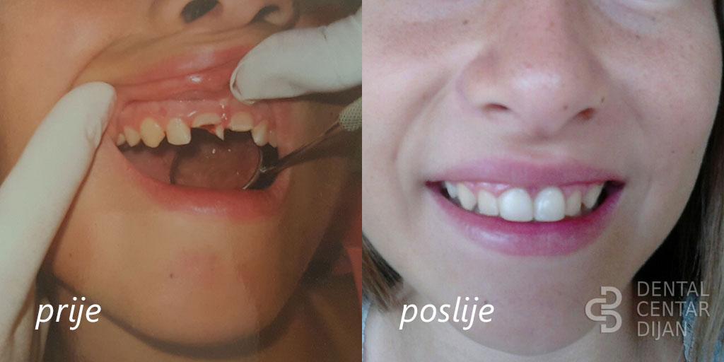 Traumatologija zuba